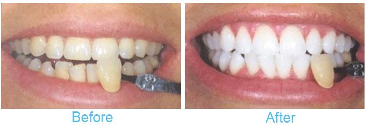 Teeth Whitening Battle Corner House Battle
